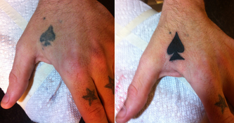 4-18-before-after-spades-tats.jpg