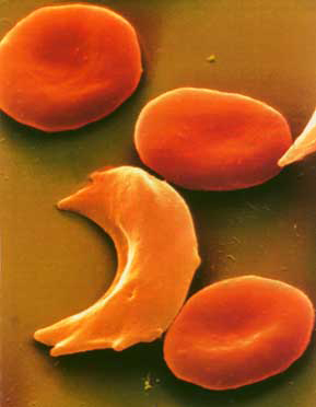 030513_SICKLE-CELL.JPG